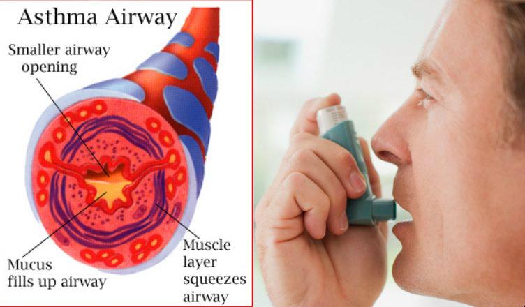 Fish Prasad: A Cure For Asthma